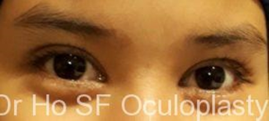 Post op: A suitable height double eyelid enhance the facial look and make one looks more attractive!!