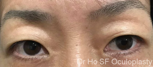 Pre op:  redundant upper eyelid skin for both eyes.