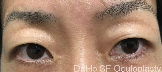 Pre op:  Patient has excess upper eyelid skin and single eyelid crease