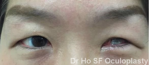 Pre insertion of prosthesis: unsightly left eye stopped this patient develop social life.