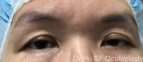 Pre op: This lady has dermatochalasis, ptosis and brow droope.  It lead to a perceived 'sad' look.