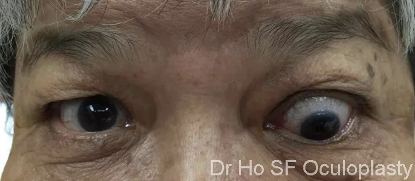 Moderate thyroid eye disease with downward displacement of left eye despite oral steroid treatment.