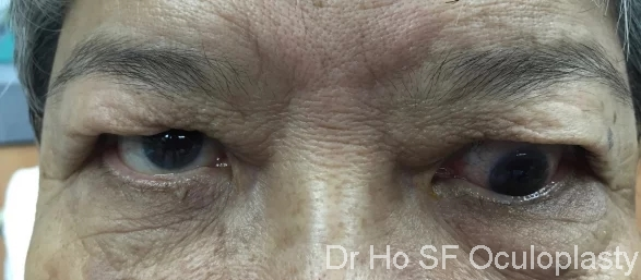 Post local treatment : the inferior displacement of eye has improved significantly. Unfortunately, patient decline treatment and hence still some downward deviation.