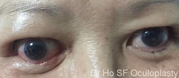 Post op: Bilateral orbital decompression and hard palate graft to treat lower eyelid retraction. Partial success in right eye due to development of cicatricialsclerosing and response secondary to steroid.