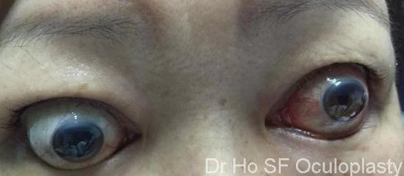 Thyroid Eye Disease Graves Disease In Ipoh Kuala Lumpur