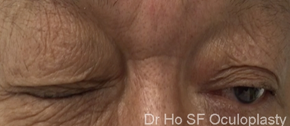 Pre op:  This patient is not able to open both of his eyes.  He has multiple botox injection which has not been helping.