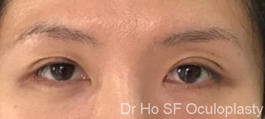 Post op:  double eyelid and most importantly, natural according to Chinese beauty standard.