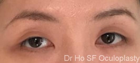 Pre op:  single eyelid and sleepy look.