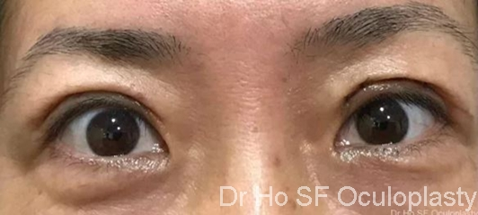 Post op:  2 weeks post op, patient looks much more refreshed and the double eyelid looks natural and not too high.