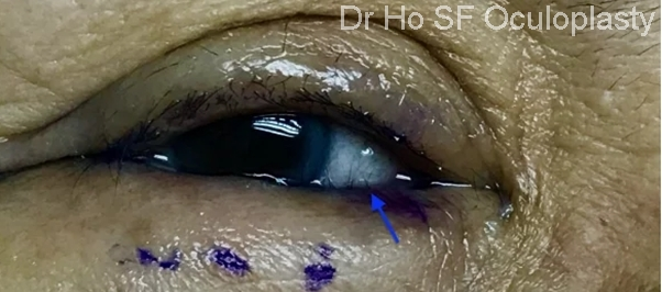 Pre op: inturning eyelashes secondary to inturning eyelid leading itchy watery uncomfortable right eye.