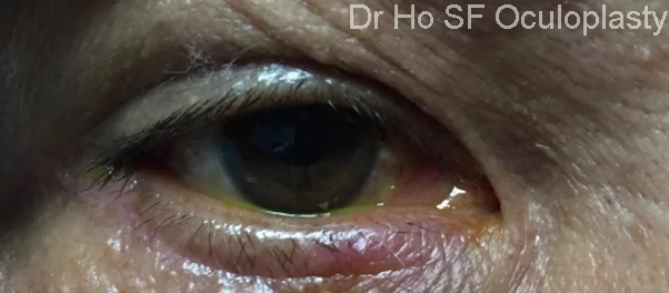 Post Op: Lashes was returned to its original position. The scar will slowly fade with time.