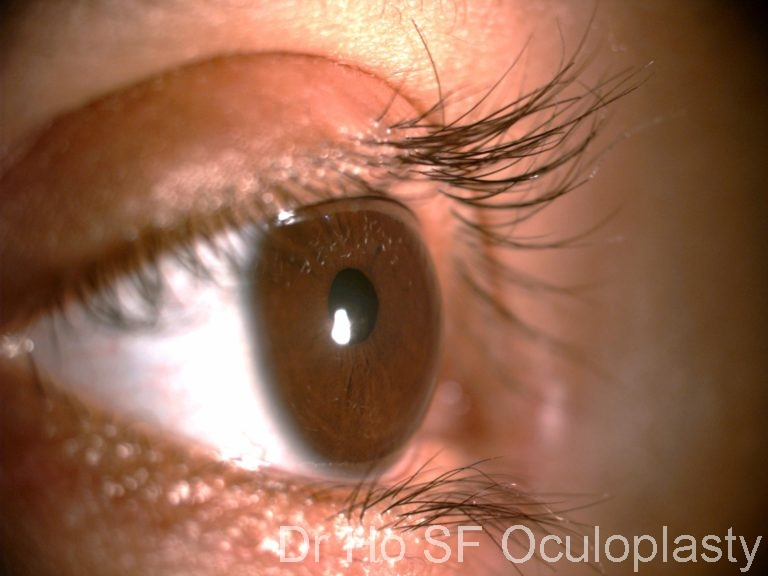 Post op: Corrected eyelashes direction and both upper and lower eyelashes everted out.