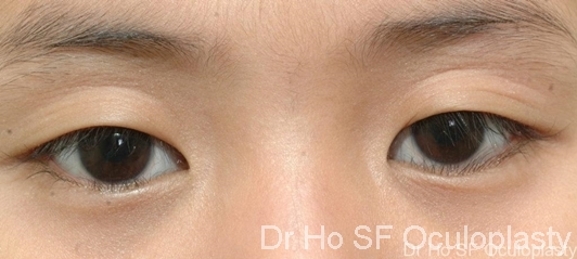 Pre op:  Single skin crease with drooping down eyelashes make one looks sleepy.