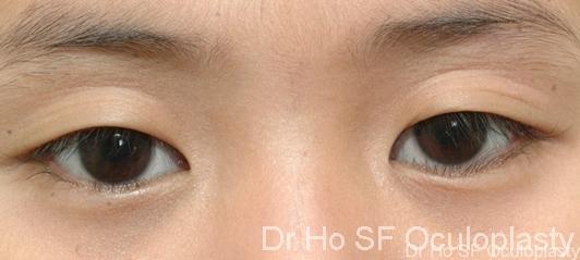 Pre op:  Single skin crease with drooping down eyelashes make one looks sleepy.