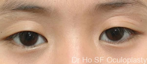 Pre op: similar girl with epiblepharon upper and lower eyelid leading to eyelashes poking into the eyes and sleepy look.