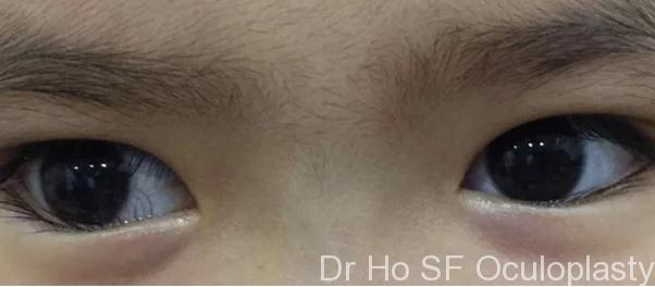 Pre op: This girl has watery irritable eyes. The worrying sign is there is a vessel growing into her cornea which if left progressive it may affect vision as it can cause scarring.