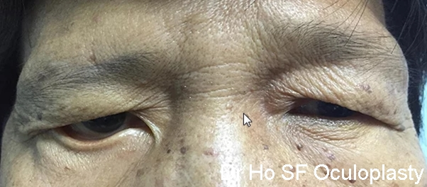 Pre Op: This patient has right facial nerve palsy. The brow in the right eye is dropping. The lower eyelid also evert out causing water to come out. The face look asymmetrical.