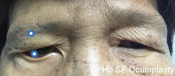 Patient with right facial nerve palsy. Note right brow drooping, right lower eyelid ectropion (everting out) and marked facial asymmetry.