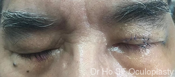 Post Op: immediately post op, left eye is able to close now.