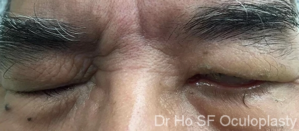 Pre Op: This man has brain tumor removed leaving him unable to close left eye.