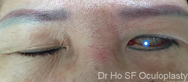 Left facial nerve palsy secondary to brain tumor. Patient is not able to close left eye.