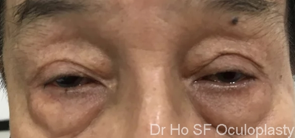Pre Op: Lower eyelid bags with significant descent of mid cheek. There is a deep nasojugal fold.