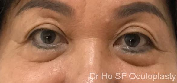 Pre op: Bilateral obvious lower eyelid bags