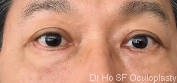 Post op: Definitely look younger and more refreshed post bilateral lower eyelid blepharoplasty, fat repositioning /lateral canthoplasty/orbicularis suspension flap