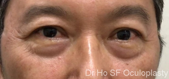 Pre op: Lower eyelid bags gives a tired appearance