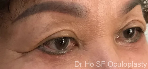 Post op: right lateral post eye bags operation to prove that it is not optical illusion from camera angle.