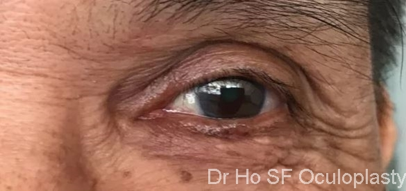 Pre op: raised pigmented lesion warrant an investigative biopsy.