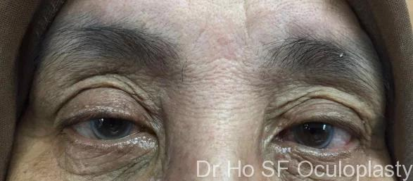 Post op: This lady has a DCR on the right side of the nose, histology showed angiolymphoid hyperplasia. The wound healed well and there is no known recurrence