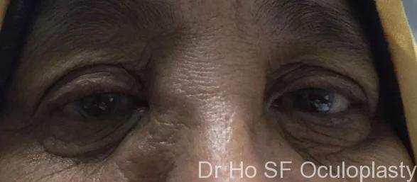 Pre op: This lady presented with a lump and watery eye