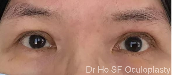 Post op:  After combination of temporal brow lift, bilateral ptoiss repair and blepharoplasty, the patient looks more alert and attentive.