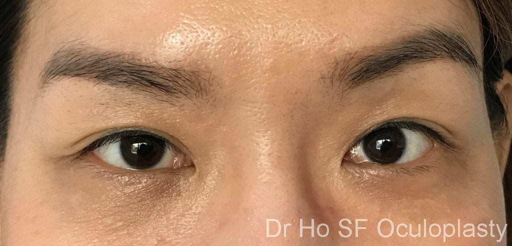 Post op: within one week, the eye bags has disappeared!!