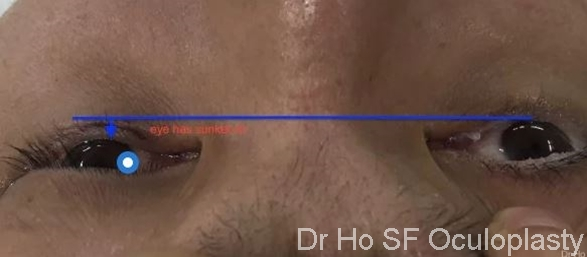 Pre Op: The left eye has sunken in secondary to volume expansion after a fracture in the floor of orbit.