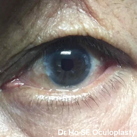 Post op: Post removal of orbital fat, the eyes look much better and dry eyes symptoms improved.
