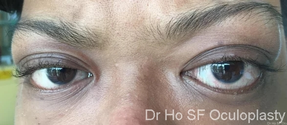 Pre op and treatment: This boy has bilateral proptosis (eyes protruding out) with lashes poking into eye (secondary epiblepharon). He has thyroid dysfunction.