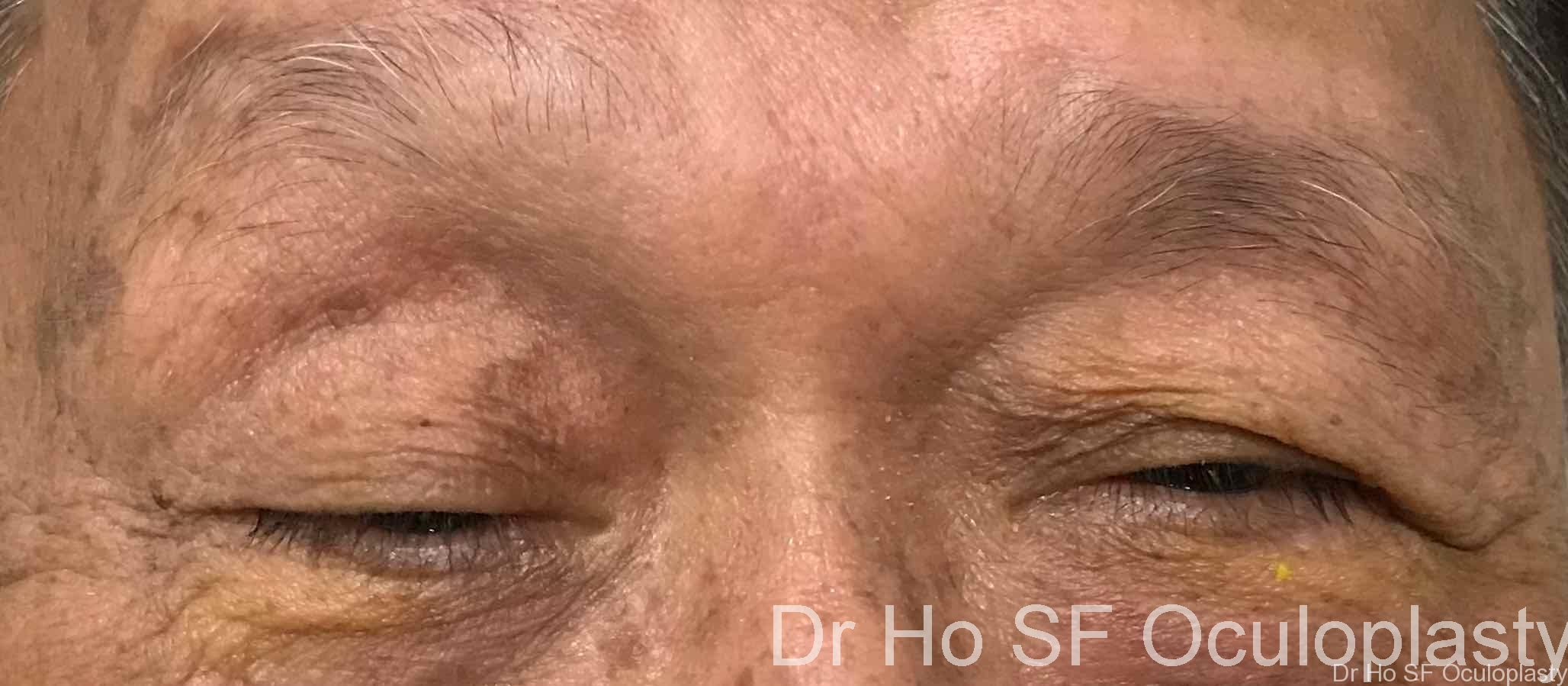 Pre op:  Severe ptosis (Droopy eyelid), right more than left.