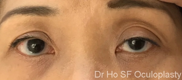Pre op: Droopy eyelid, left > Right leading to sad look