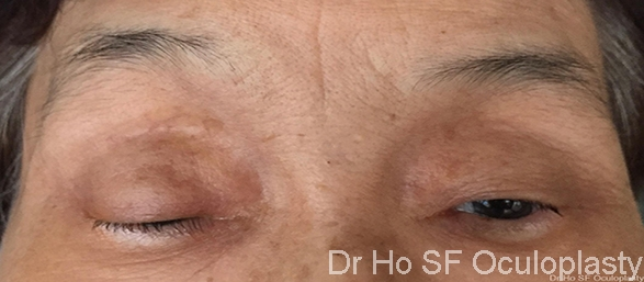 Pre op: Severe pre op ptosis with frontalis overaction.