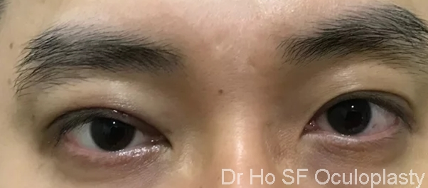 Post op: A pair of natural well elevated eyelid gives patient a sophisticated and interested look.