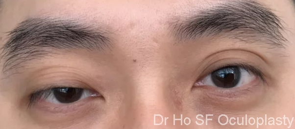 Pre op: Is eyelid surgery only for woman? No, this man feels that the droopy eyelid has hampered his vision and make people false perceive him as uninterested and tired.