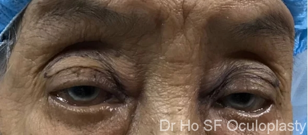 Pre op: Age is never a hindrance. This 85 years old lady present with droopy eyelid especially in the evening stopping her from reading.