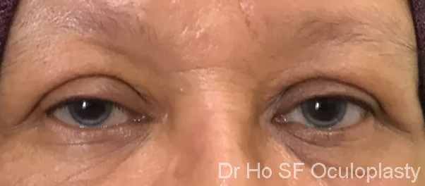Pre op: Sometimes, ptosis can develop after cataract surgery as speculum can easily damage the levator muscle
