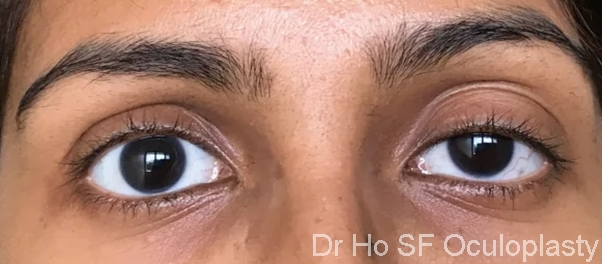 Pre op: Left ptosis in a young lady who wear contact lenses