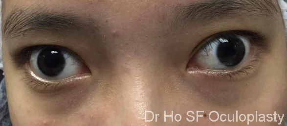 Pre op: This girl has left divergent squint (left eye deviated out) since young. She is keen to look more normal in order to get a job/training opportunity.