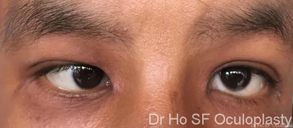 Pre op: this patient has a slightly more complicated squint with right eye deviated in and left eye deviated up.