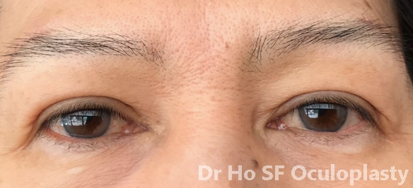 Post op: lower eyelid bags has disappear (Results in one month)