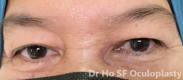 Post op: Both eyes look good with minimal visible scarring